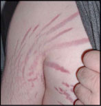 bartonella-rash.jpg