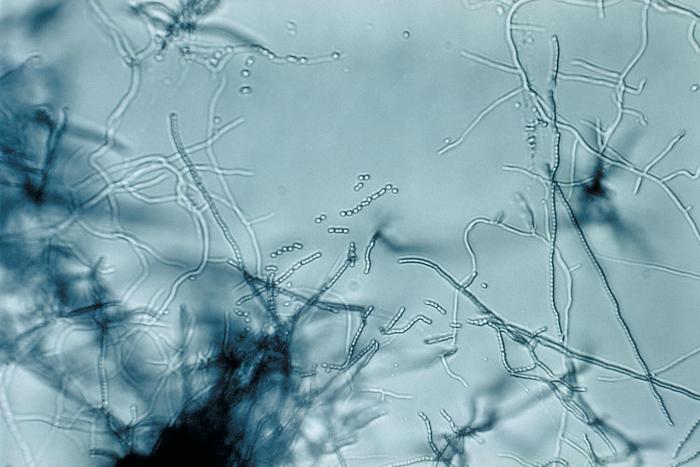 Streptomyces_sp._PHIL_2983_lores.jpg